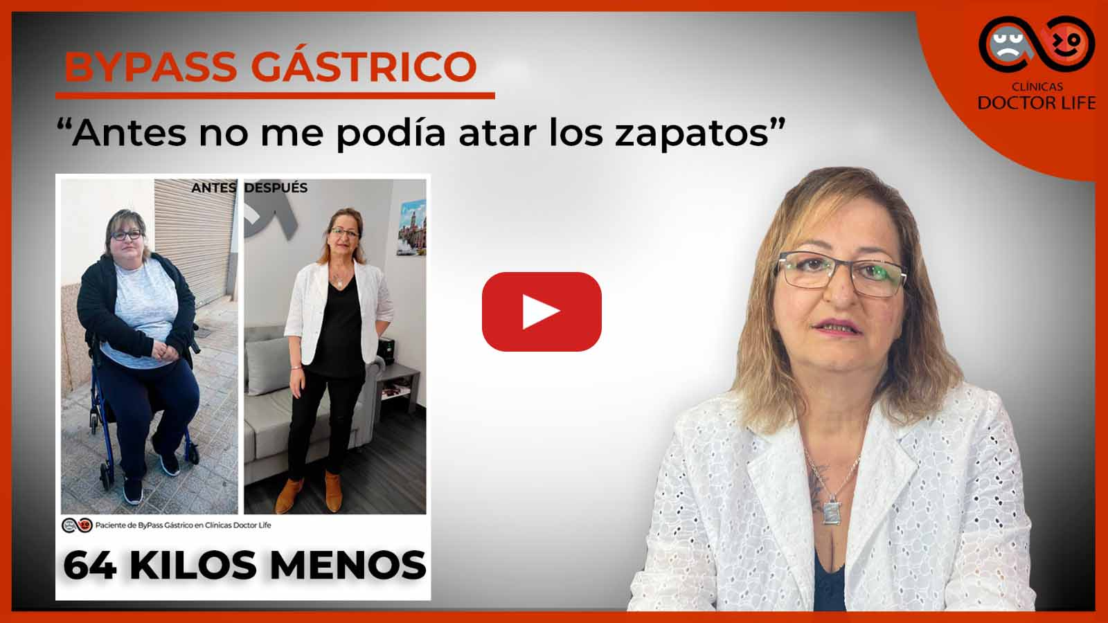 ByPassGastrico experiencia real