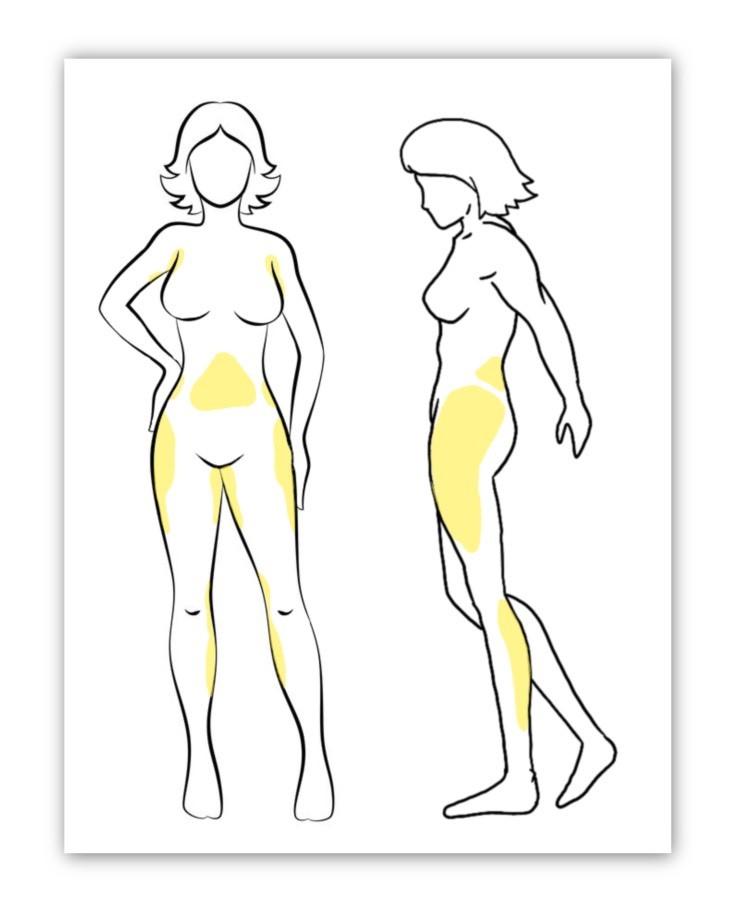 Liposucción esquema zonas